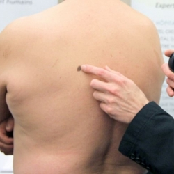 La FDA autoriza Keytruda para el tratamiento del melanoma avanzado