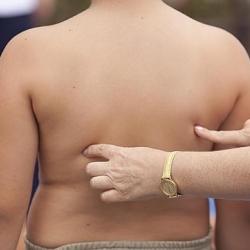 Los niños obesos podrían mostrar señales tempranas de problemas cardíacos