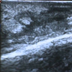 La ecografía cutánea permite medir la extensión de las enfermedades inflamatorias dermatológicas y la respuesta a los tratamientos