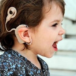 Prueban implante para ayudar a niños con sordera
