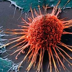 Científicos del IBEC describen cómo las células cancerígenas del tumor mamario se adhieren al tejido endurecido.